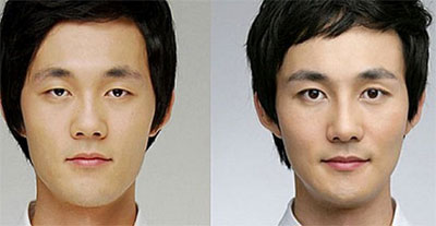 k-pop-korean-plastic-surgery