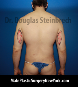 tricep-implants-NYC-marks