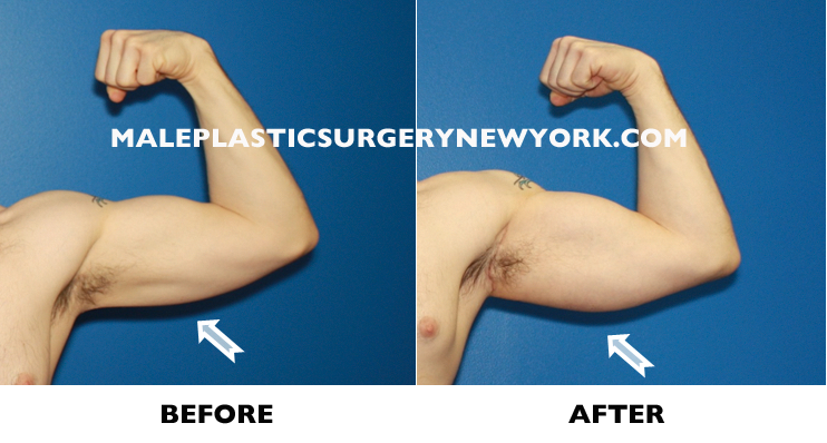 tricep-implants-before-after-NYC