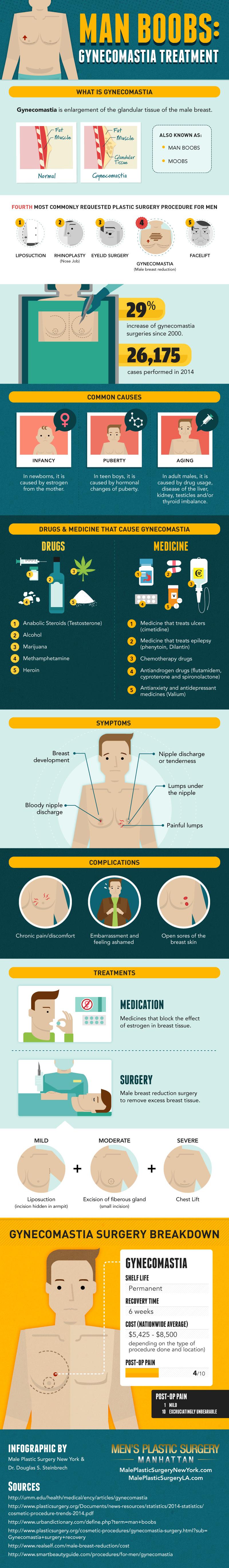 gynecomastia-man-boobs-infographic