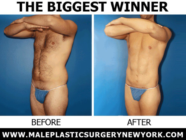 biggest-winner-male-plastic-surgery-NYC
