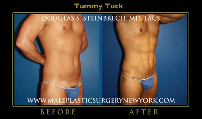 biggest-winner-male-tummy-tuck-NYC
