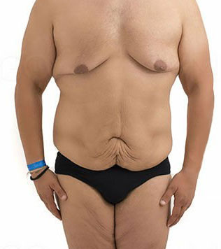 excess-skin-removal-after-bariatric-weight-loss-in-los-angeles